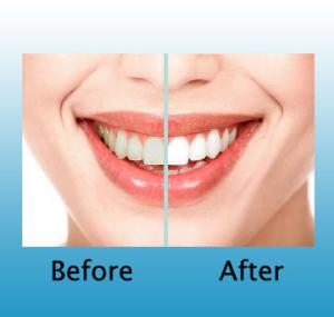 teeth whitening St Paul - Chalet Dental Care