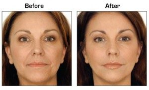 botox in St Paul with Chalet Dental Care | cosmetic dentistry