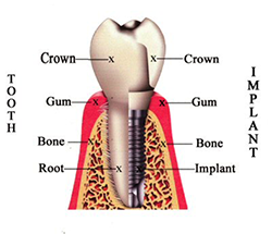 dental implants St. Paul - Chalet Dental Care